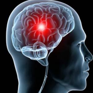 来自尼日尔的试验发现 全村预防性抗生素含有脑膜炎的扩散