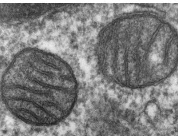研究线粒体疾病和衰老的新研究工具
