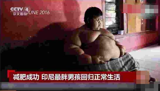 世界最胖男孩减重200斤 在11岁时体重就高达190多公斤